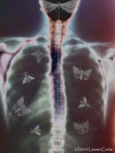 Caged Nerves, digital photo collage (c)Lauren Curtis